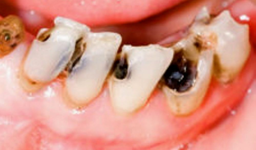 denti-carie-placca-e1551805196969